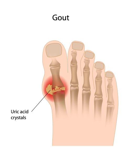 Vector ngón chân cái lớn bị bênh Gout