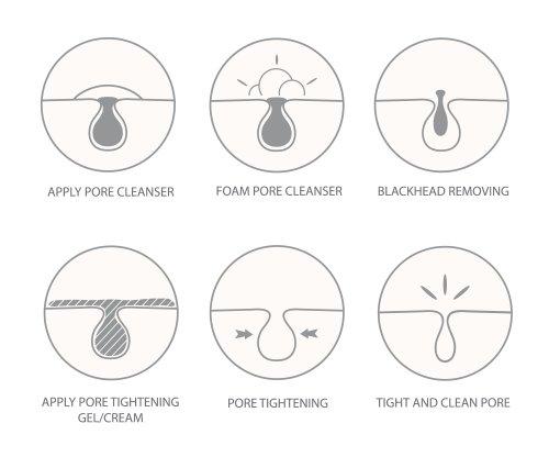 Vector loại bỏ mụn đầu đen và các biểu tượng làm sạch lỗ rỗng.
